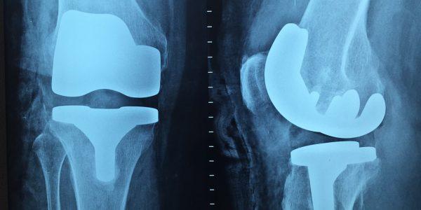 szpital ortopedyczny warszawa